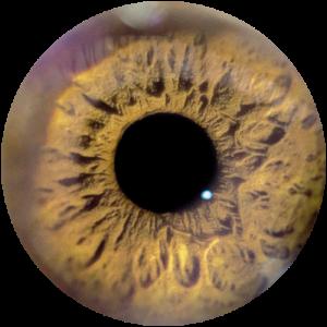 EyeHealth